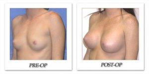 phoca_thumb_l_mandris-breast-augmentation-026