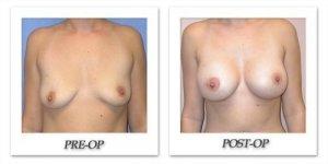 phoca_thumb_l_mandris-breast-augmentation-029