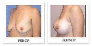 phoca_thumb_l_mandris-breast-augmentation-030