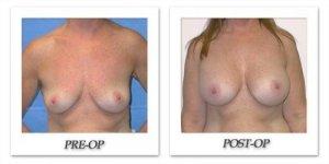 phoca_thumb_l_mandris-breast-augmentation-031