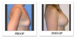 phoca_thumb_l_mandris-breast-augmentation-032