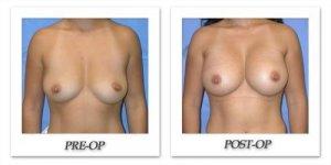 phoca_thumb_l_mandris-breast-augmentation-033
