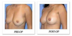 phoca_thumb_l_mandris-breast-augmentation-034