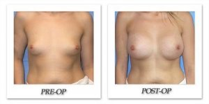 phoca_thumb_l_mandris-breast-augmentation-035