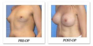 phoca_thumb_l_mandris-breast-augmentation-036