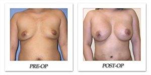 phoca_thumb_l_mandris-breast-augmentation-037