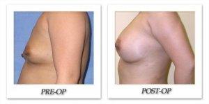phoca_thumb_l_mandris-breast-augmentation-038