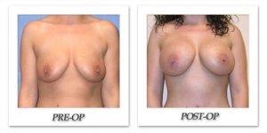 phoca_thumb_l_mandris-breast-augmentation-039