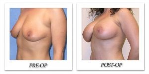 phoca_thumb_l_mandris-breast-augmentation-040