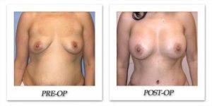 phoca_thumb_l_mandris-breast-augmentation-041