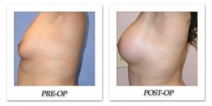 phoca_thumb_l_mandris-breast-augmentation-042