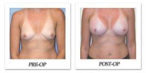 phoca_thumb_l_mandris-breast-augmentation-043