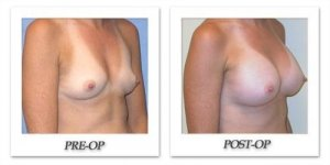 phoca_thumb_l_mandris-breast-augmentation-044
