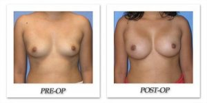 phoca_thumb_l_mandris-breast-augmentation-045