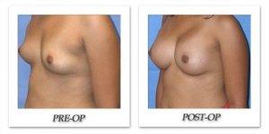 phoca_thumb_l_mandris-breast-augmentation-046