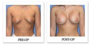 phoca_thumb_l_mandris-breast-augmentation-047