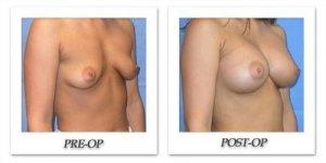 phoca_thumb_l_mandris-breast-augmentation-048