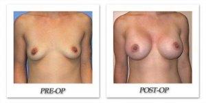 phoca_thumb_l_mandris-breast-augmentation-049