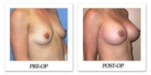 phoca_thumb_l_mandris-breast-augmentation-050