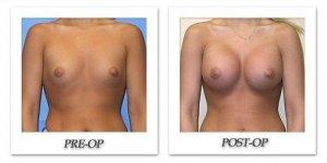 phoca_thumb_l_mandris-breast-augmentation-051