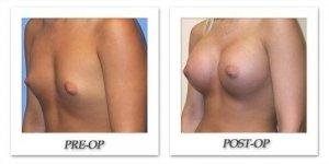 phoca_thumb_l_mandris-breast-augmentation-052