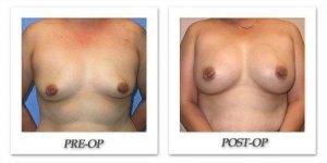 phoca_thumb_l_mandris-breast-augmentation-053