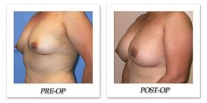 phoca_thumb_l_mandris-breast-augmentation-054