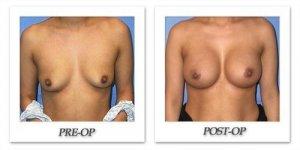 phoca_thumb_l_mandris-breast-augmentation-055