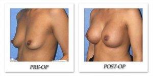 phoca_thumb_l_mandris-breast-augmentation-056