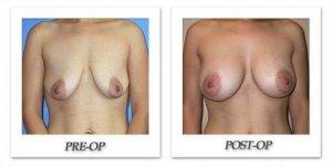 phoca_thumb_l_mandris-breast-augmentation-057