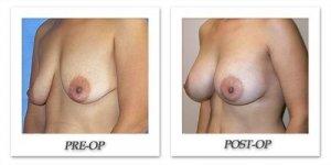 phoca_thumb_l_mandris-breast-augmentation-058