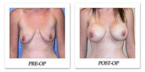 phoca_thumb_l_mandris-breast-augmentation-059