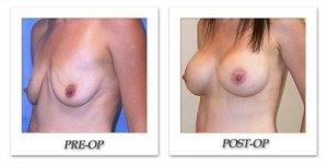 phoca_thumb_l_mandris-breast-augmentation-060