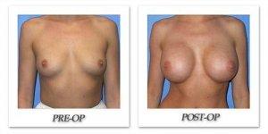 phoca_thumb_l_mandris-breast-augmentation-061