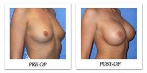 phoca_thumb_l_mandris-breast-augmentation-062