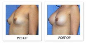 phoca_thumb_l_mandris-breast-augmentation-064