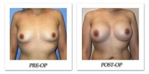 phoca_thumb_l_mandris-breast-augmentation-065