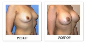 phoca_thumb_l_mandris-breast-augmentation-066