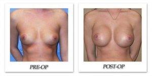 phoca_thumb_l_mandris-breast-augmentation-067