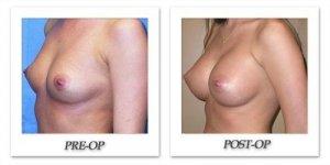 phoca_thumb_l_mandris-breast-augmentation-068