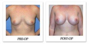 phoca_thumb_l_mandris-breast-augmentation-069