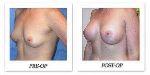 phoca_thumb_l_mandris-breast-augmentation-070