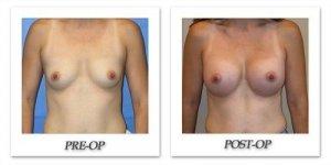 phoca_thumb_l_mandris-breast-augmentation-071