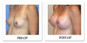 phoca_thumb_l_mandris-breast-augmentation-072