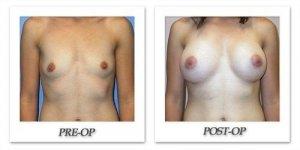 phoca_thumb_l_mandris-breast-augmentation-073
