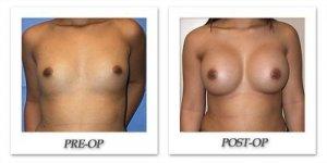 phoca_thumb_l_mandris-breast-augmentation-075