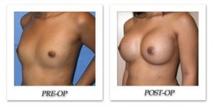 phoca_thumb_l_mandris-breast-augmentation-076