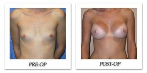 phoca_thumb_l_mandris-breast-augmentation-077