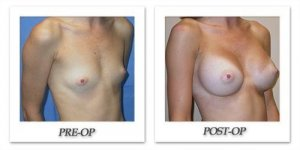 phoca_thumb_l_mandris-breast-augmentation-078