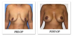 phoca_thumb_l_mandris-breast-augmentation-079